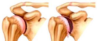 a csípőízületek deformáló artrózisa 1 evőkanál)